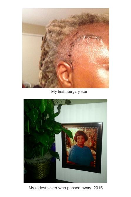 tMy brain surgery scar